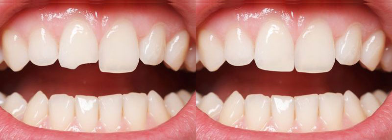 dental-bonding-before-and-after-photo