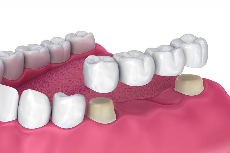 dental-bridges-3d-illustration