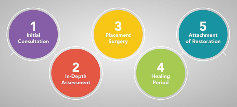 There are several steps involved in restoring your smile with dental implants.