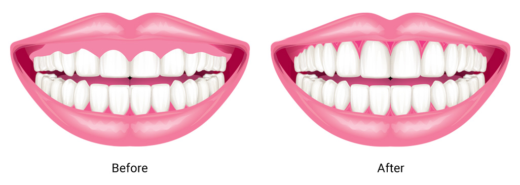 gum-contouring-before-and-after-illustration