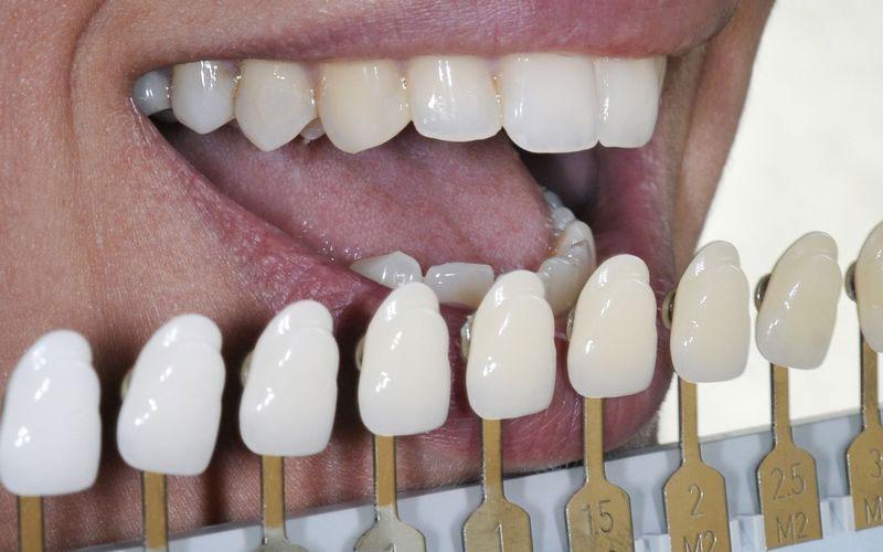 teeth-whitening-gauge