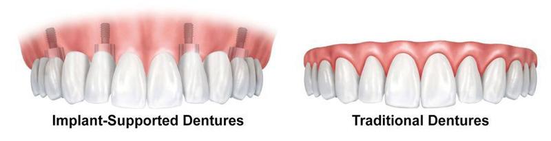 traditional-dentures-versus-implant-supported-dentures